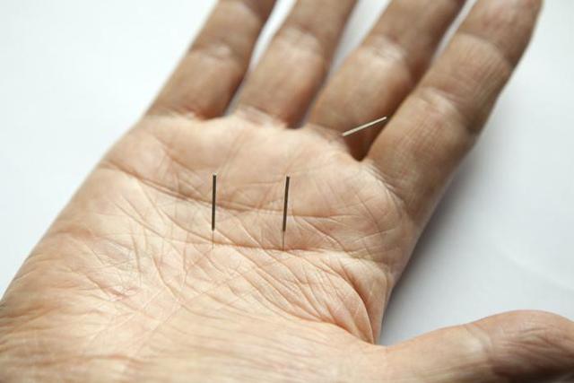 Kako vam lahko akupunktura pomaga pri teku